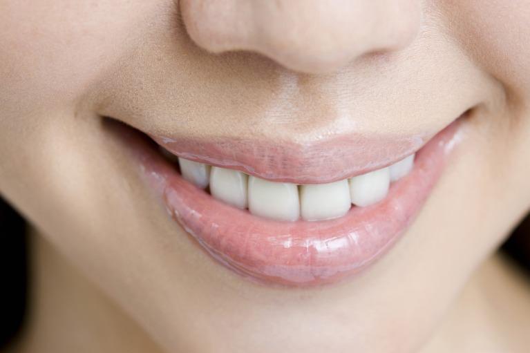 歯が綺麗になって自信がよりついたと、おっしゃっていただけます。